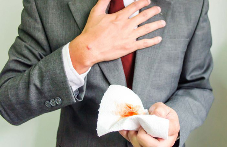 chảy máu tiêu hóa
