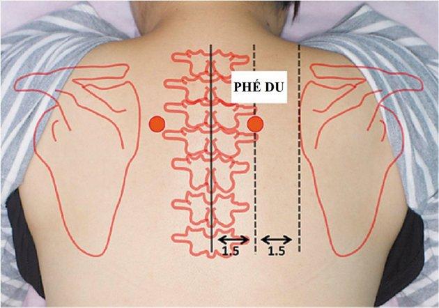 Chích lể chữa đau lưng