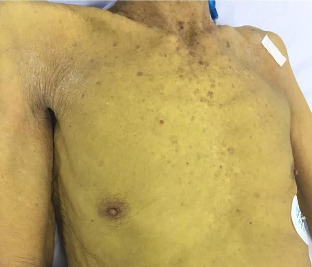 Người-mắc-bệnh-gan-nhiễm-mỡ-thường-xuất-hiện-triệu-chứng-vàng-da-mệt-mỏi