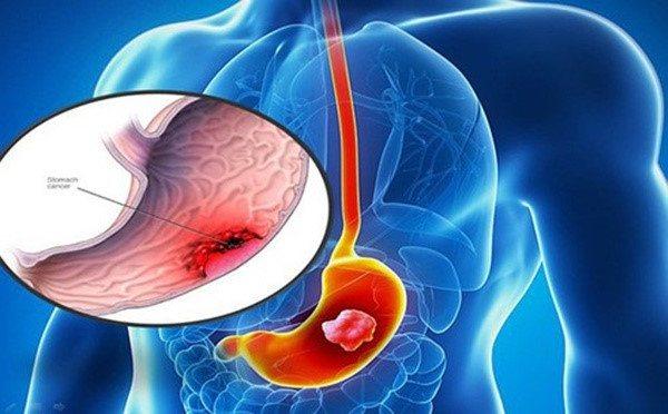 Ở-dạ-dày-yếu-tố-di-truyền-cũng-có-thể-gây-ra-ung-thư