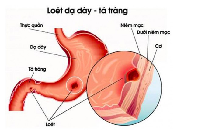 Phương-pháp-chẩn-đoán-ung-thư-dạ-dày-nhanh-chóng-và-hiệu-quả