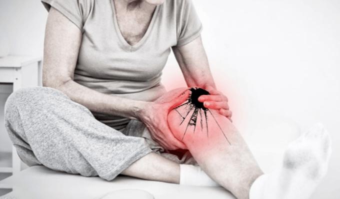 Thoái-hóa-khớp-gối-là-nguyên-nhân-dẫn-đến-đau-nhức-xương-khớp-đầu-gối