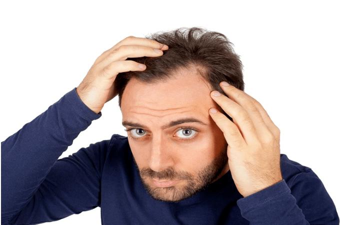 nam-giới-rụng-tóc-do-stress-hay-sử-dụng-quá-nhiều-chất-kích-thích